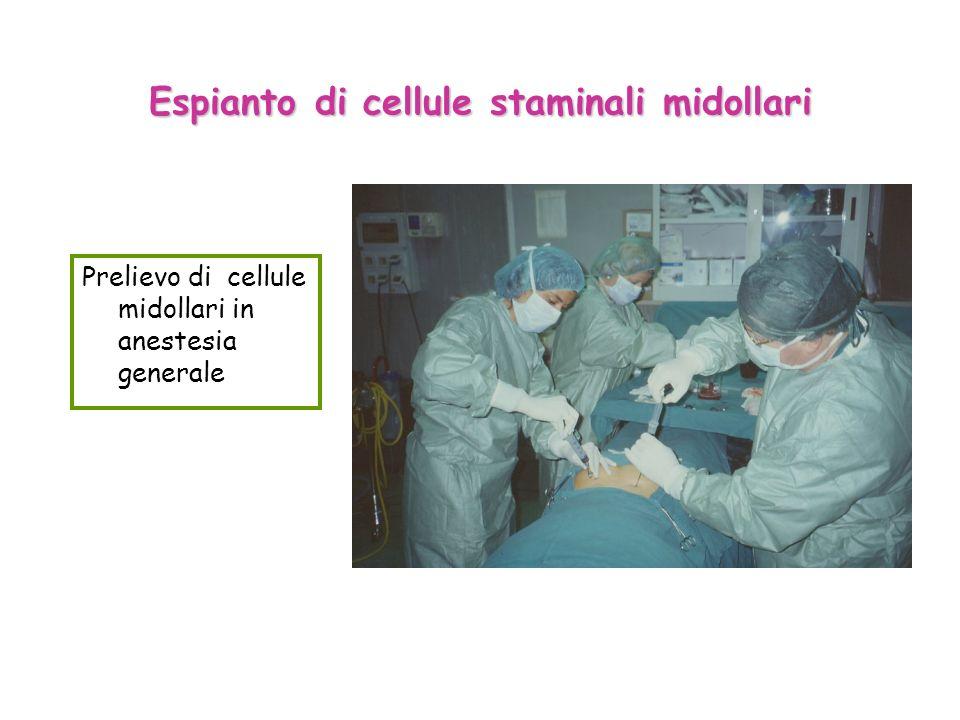 Espianto di cellule staminali midollari
