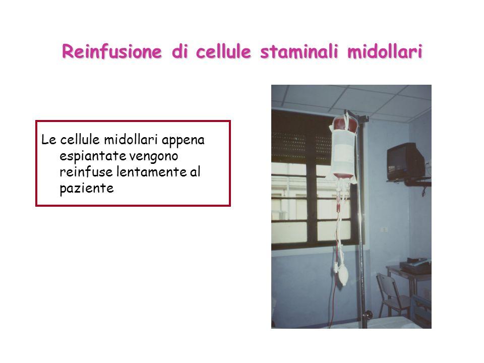 Reinfusione di cellule staminali midollari