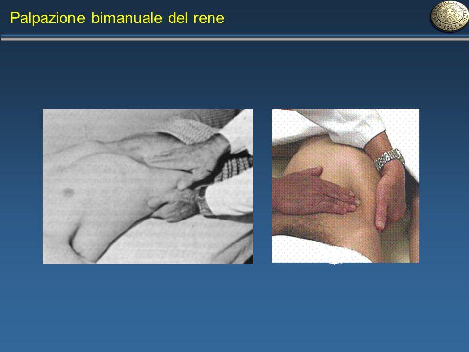 Palpazione bimanuale del rene