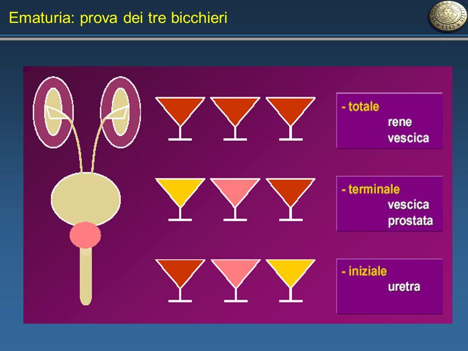 Ematuria: prova dei tre bicchieri