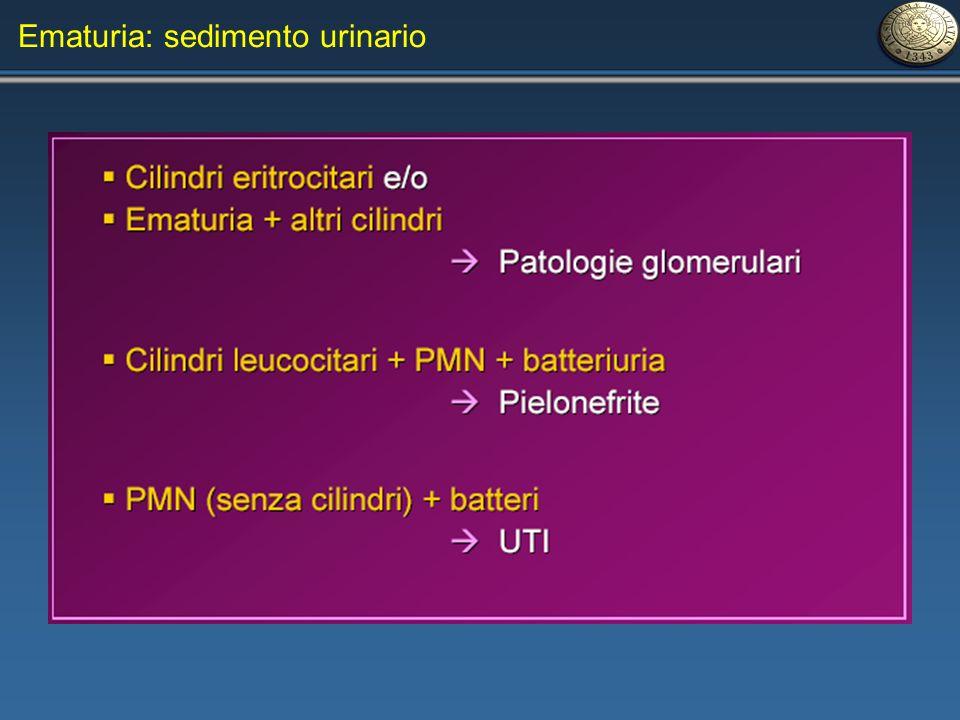 Ematuria: sedimento urinario