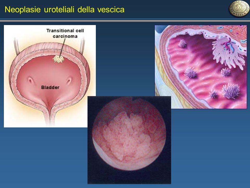 Neoplasie uroteliali della vescica