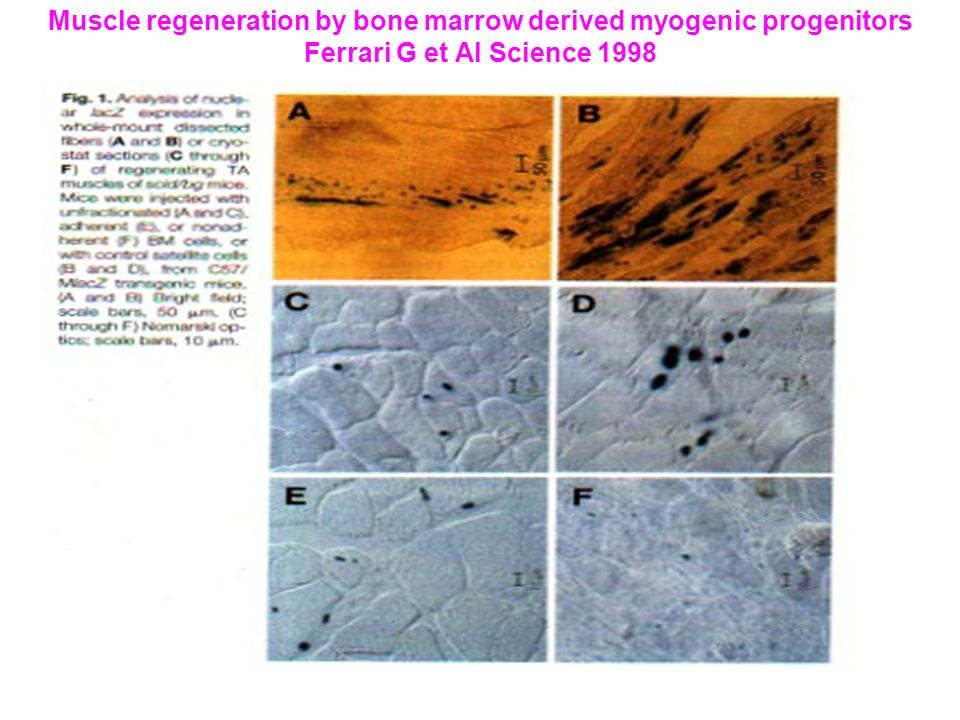 Muscle regeneration by bone marrow derived myogenic progenitors Ferrari G et Al Science 1998