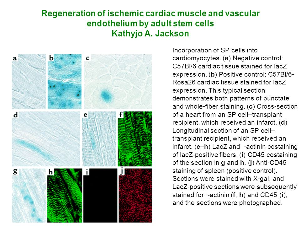 Regeneration of ischemic cardiac muscle and vascular endothelium by adult stem cells Kathyjo A. Jackson