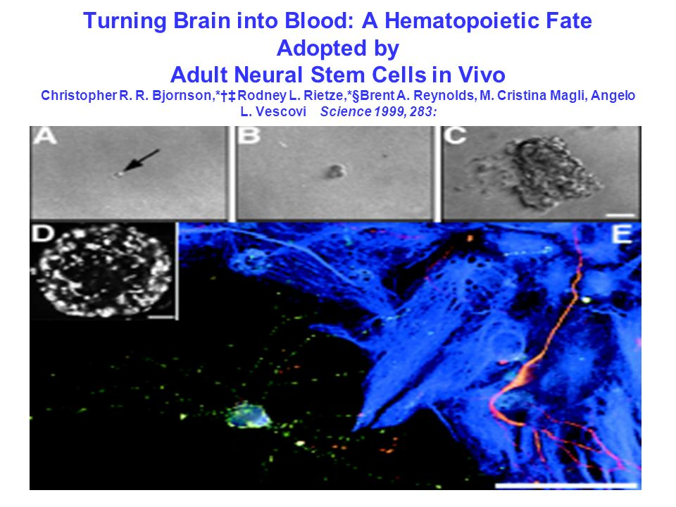 Turning Brain into Blood: A Hematopoietic Fate Adopted by Adult Neural Stem Cells in Vivo Christopher R.