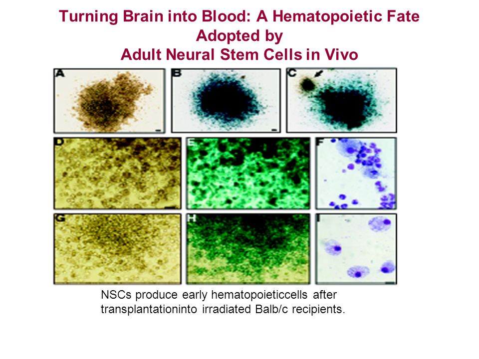 Turning Brain into Blood: A Hematopoietic Fate Adopted by Adult Neural Stem Cells in Vivo