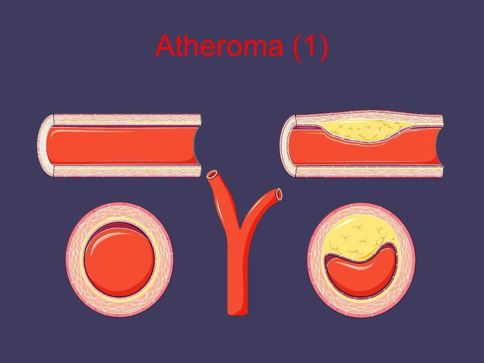 Atheroma (1)
