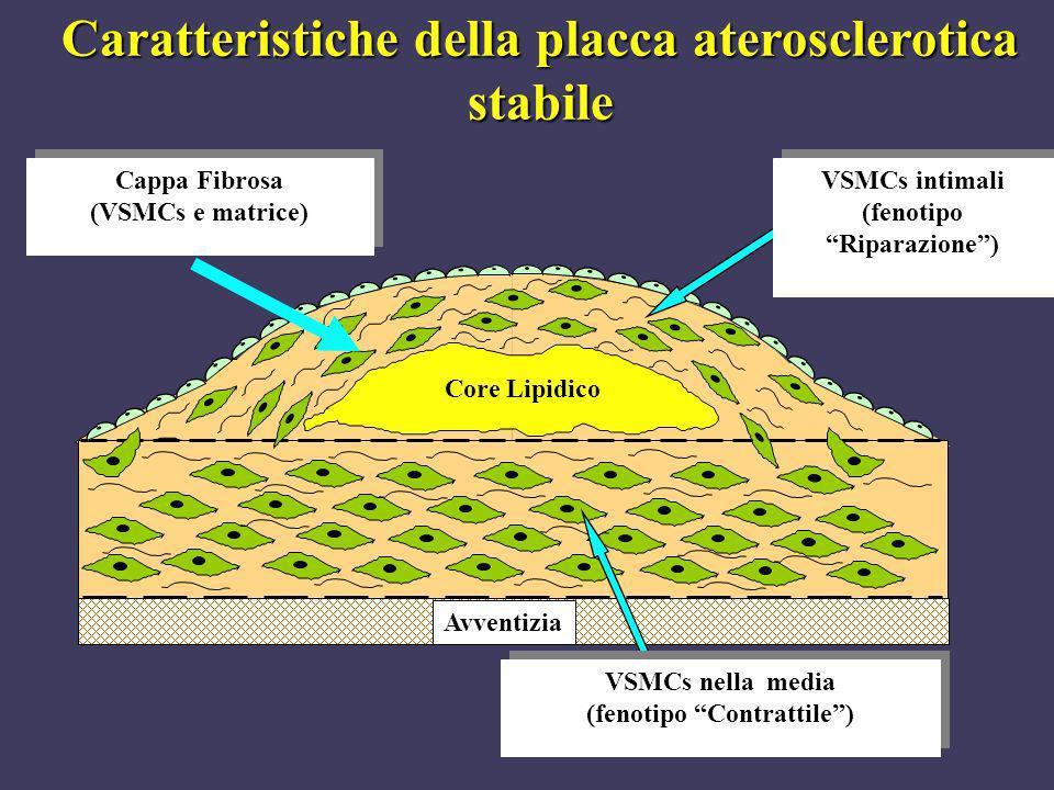 Caratteristiche della placca aterosclerotica stabile