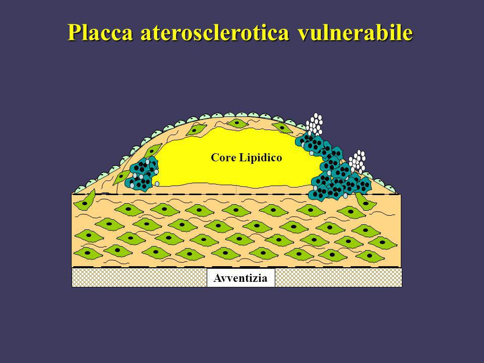 Placca aterosclerotica vulnerabile