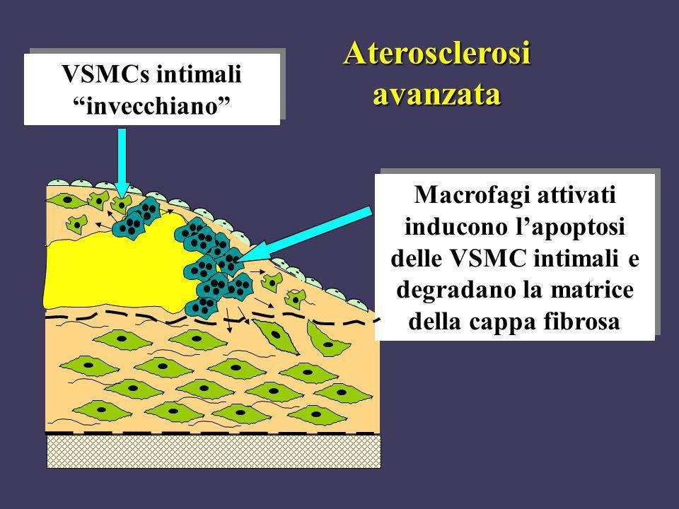 Aterosclerosi avanzata