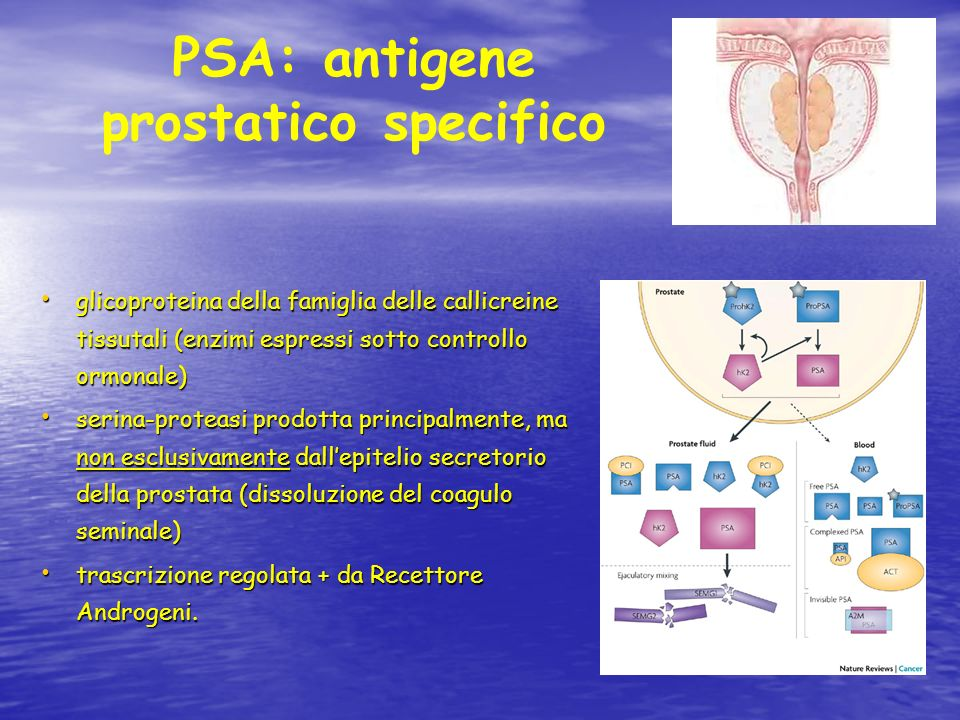 PSA: antigene prostatico specifico