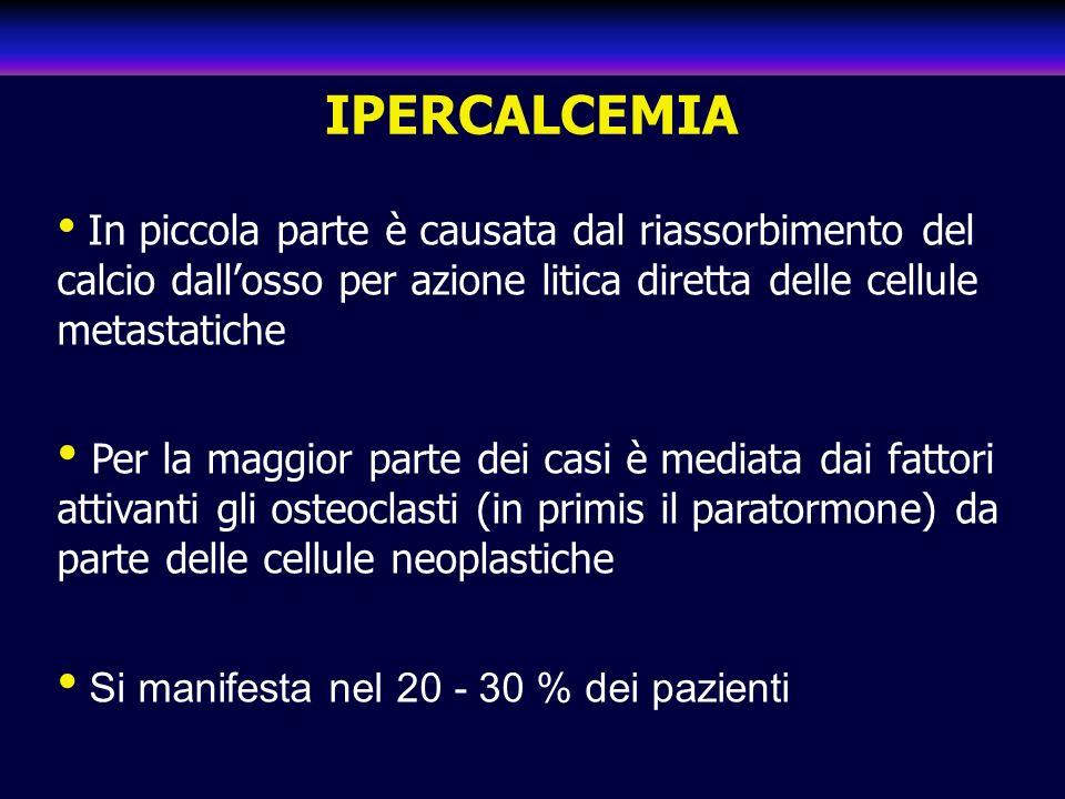 IPERCALCEMIA In piccola parte è causata dal riassorbimento del calcio dall'osso per azione litica diretta delle cellule metastatiche.