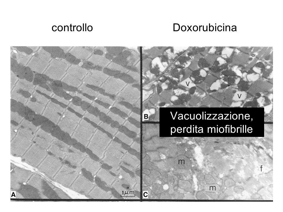 Vacuolizzazione, perdita miofibrille
