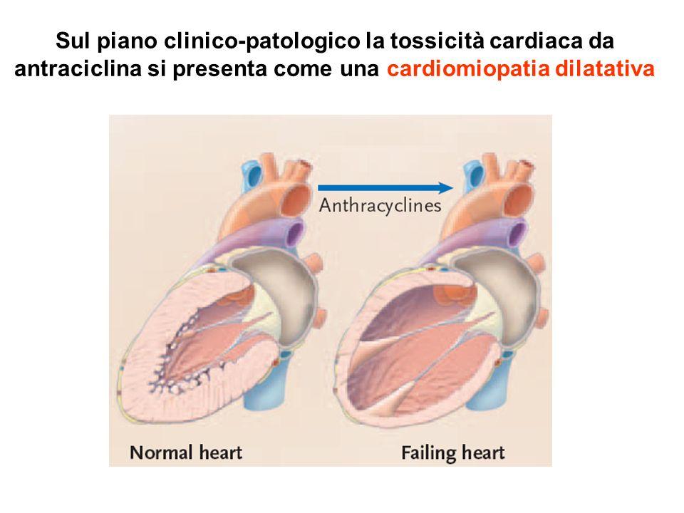 Sul piano clinico-patologico la tossicità cardiaca da