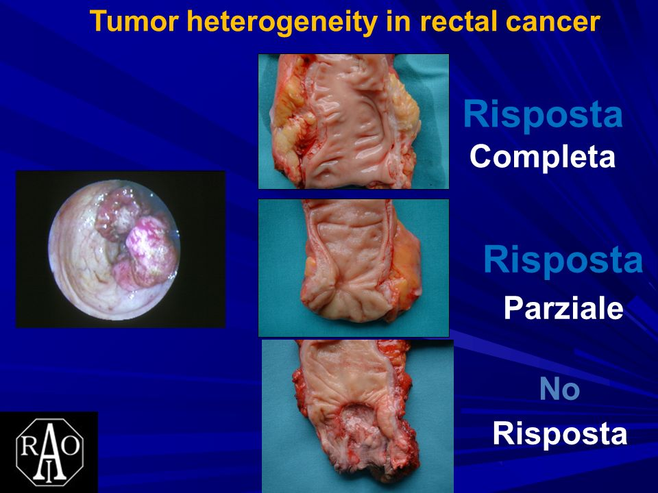 Tumor heterogeneity in rectal cancer