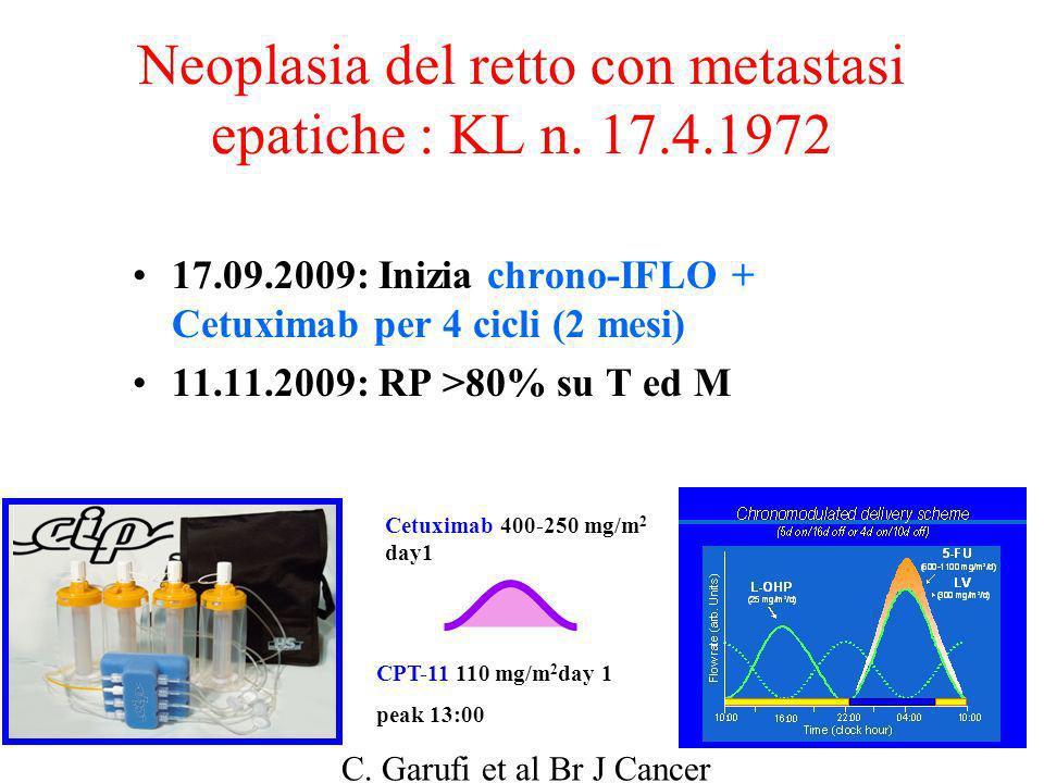 Neoplasia del retto con metastasi epatiche : KL n. 17.4.1972