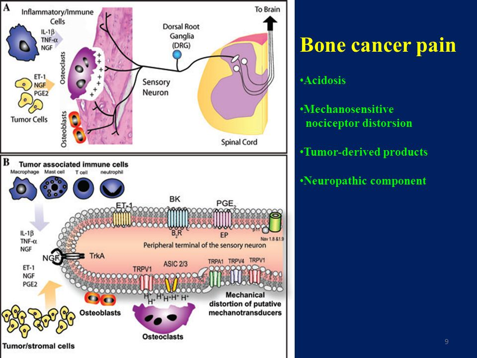 Bone cancer pain Acidosis Mechanosensitive nociceptor distorsion