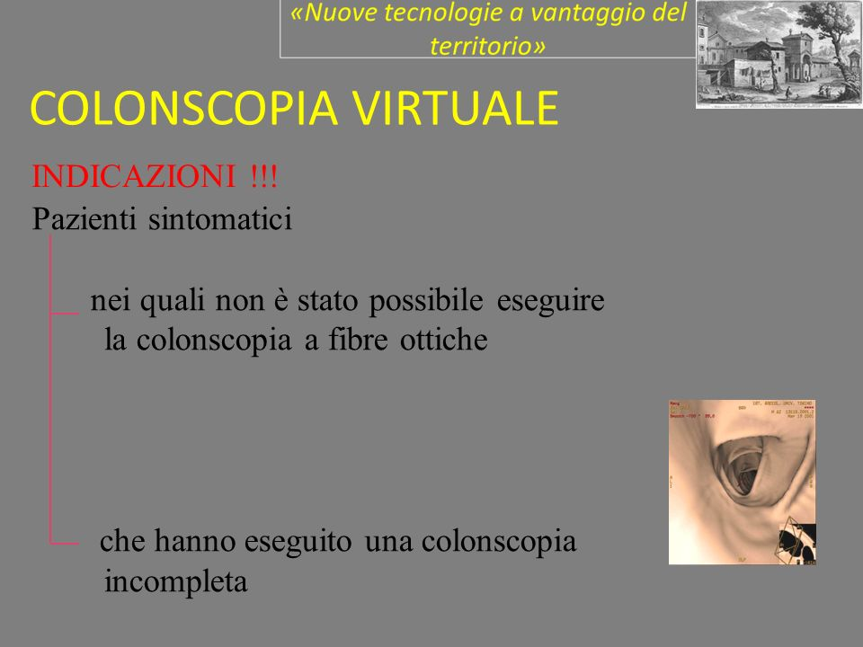 COLONSCOPIA VIRTUALE INDICAZIONI !!! Pazienti sintomatici