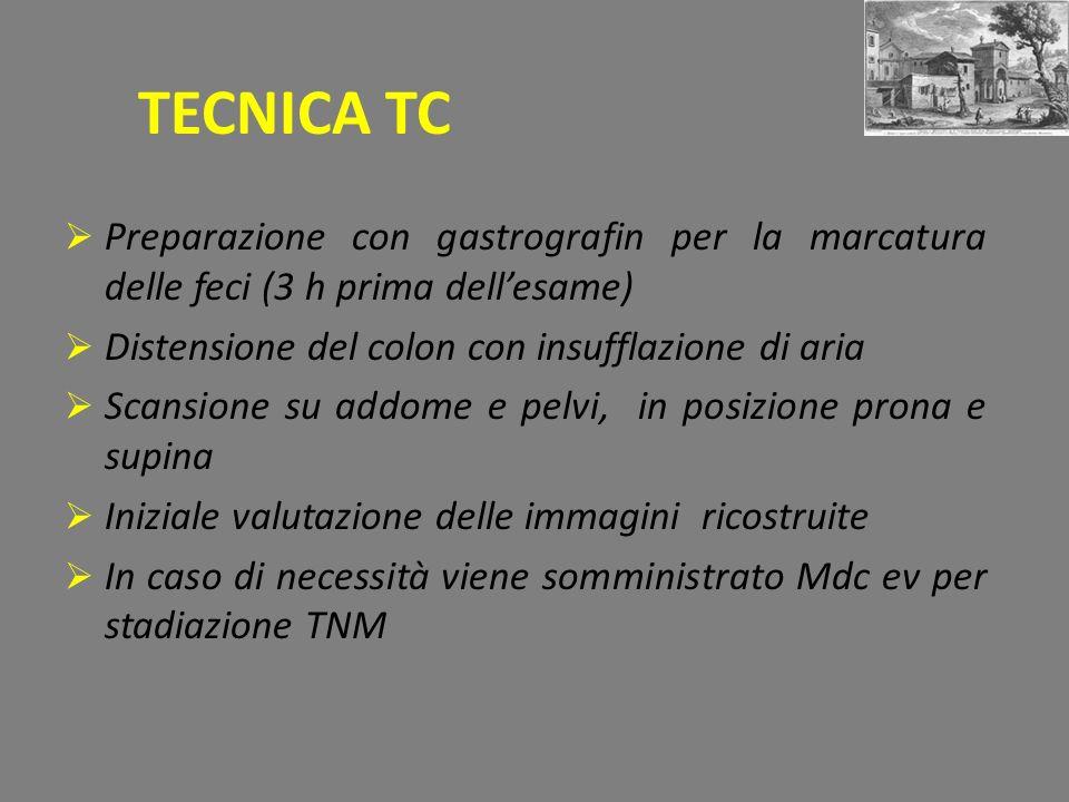 TECNICA TC Preparazione con gastrografin per la marcatura delle feci (3 h prima dell'esame) Distensione del colon con insufflazione di aria.