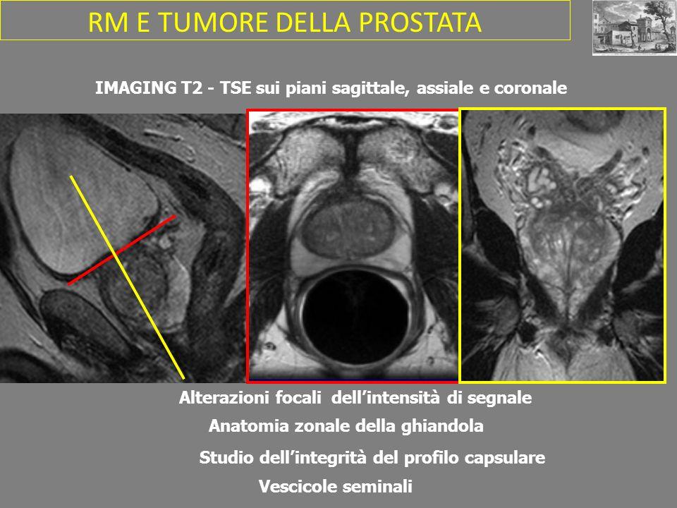 IMAGING T2 - TSE sui piani sagittale, assiale e coronale