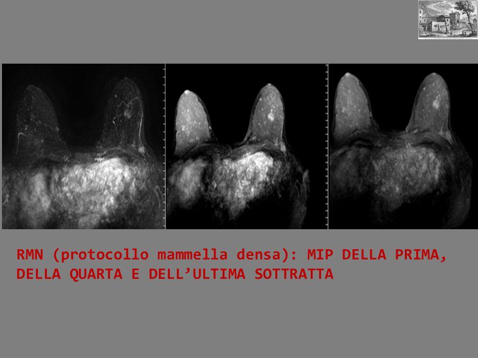 RMN (protocollo mammella densa): MIP DELLA PRIMA, DELLA QUARTA E DELL'ULTIMA SOTTRATTA