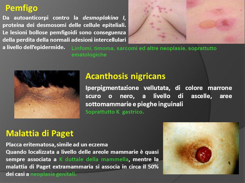 Pemfigo Acanthosis nigricans Malattia di Paget