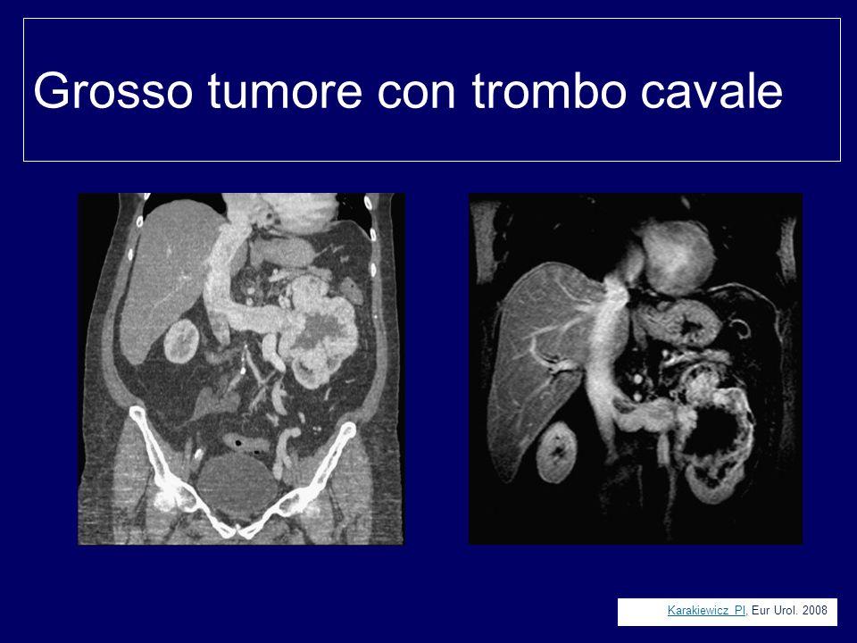 Grosso tumore con trombo cavale