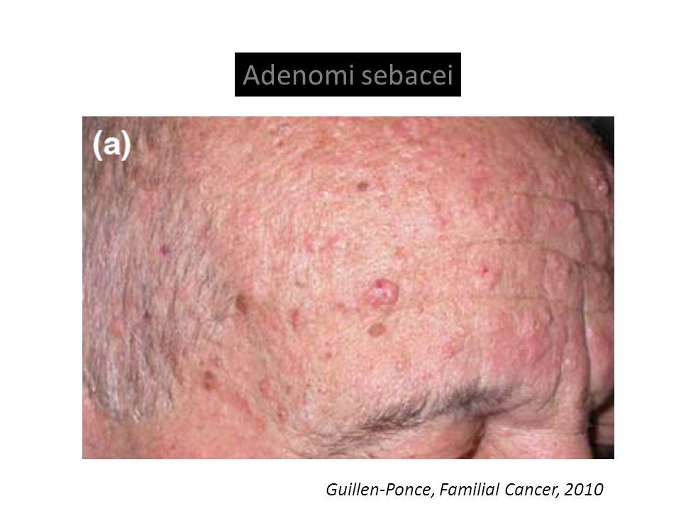 Adenomi sebacei Guillen-Ponce, Familial Cancer, 2010