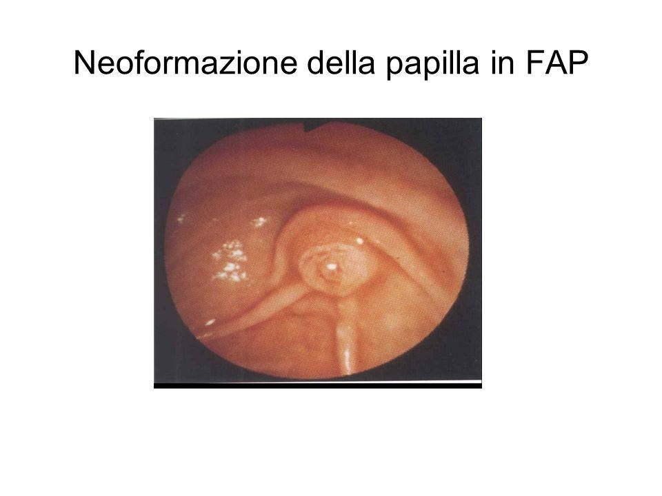 Neoformazione della papilla in FAP