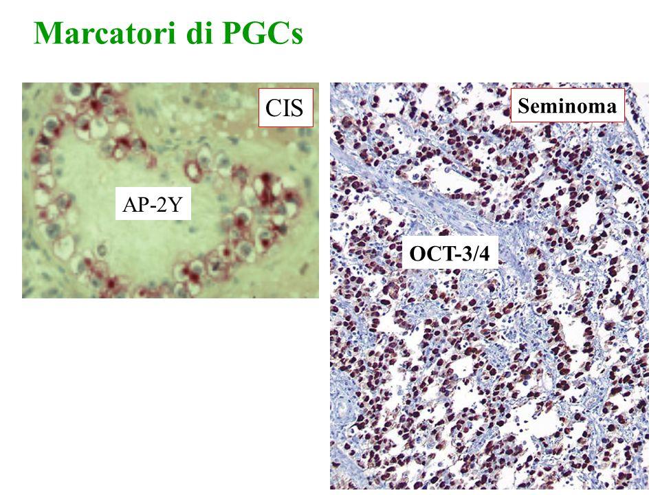 Marcatori di PGCs AP-2Y CIS OCT-3/4 Seminoma