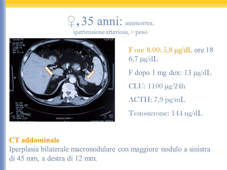 ♀, 35 anni: amenorrea, ipertensione arteriosa, > peso