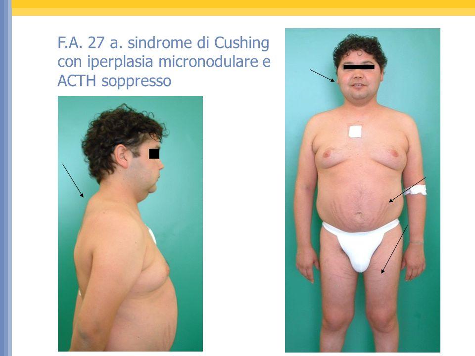 F.A. 27 a. sindrome di Cushing con iperplasia micronodulare e ACTH soppresso