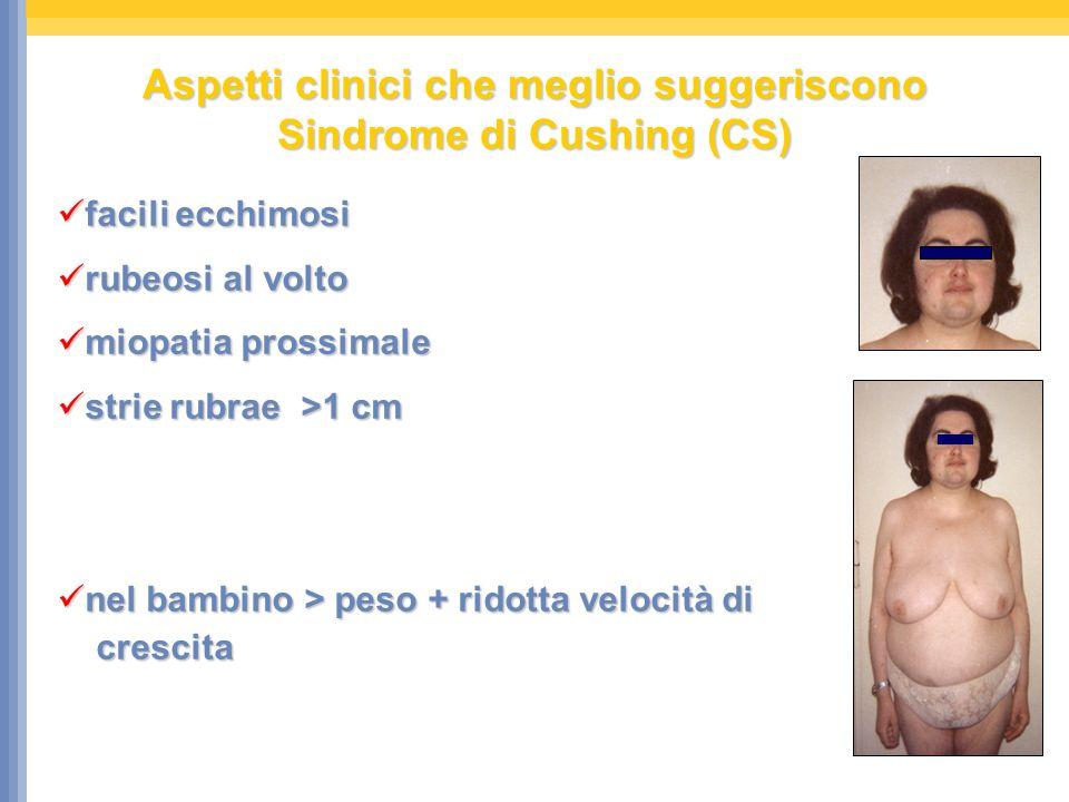 Aspetti clinici che meglio suggeriscono Sindrome di Cushing (CS)