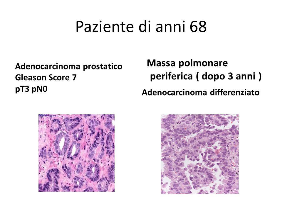 Paziente di anni 68Massa polmonare periferica ( dopo 3 anni ) Adenocarcinoma differenziato Adenocarcinoma prostatico.