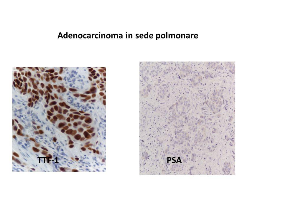 Adenocarcinoma in sede polmonare