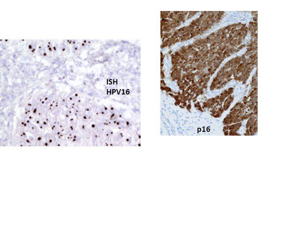 ISH HPV16 p16
