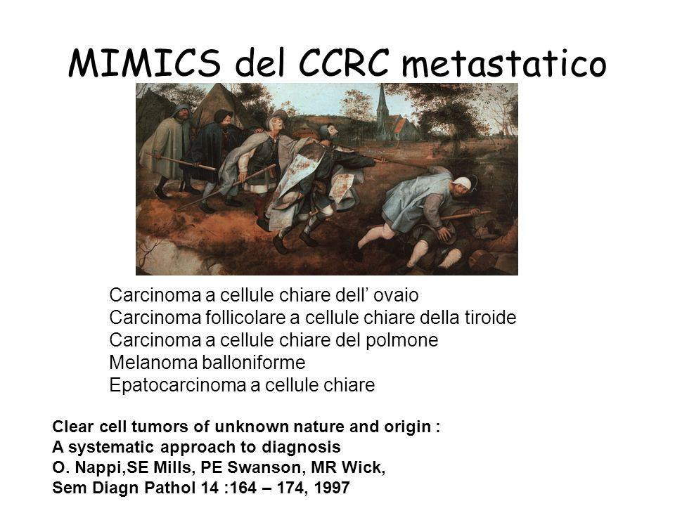 MIMICS del CCRC metastatico