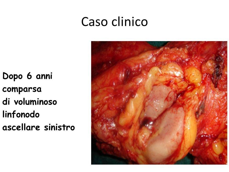 Caso clinico Dopo 6 anni comparsa di voluminoso linfonodo ascellare sinistro