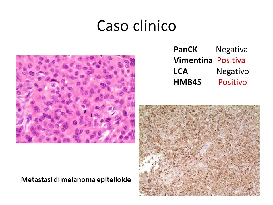 Caso clinico PanCK Negativa Vimentina Positiva LCA Negativo