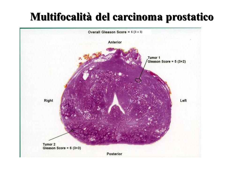 Multifocalità del carcinoma prostatico