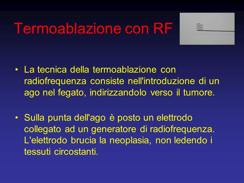 Termoablazione con RF