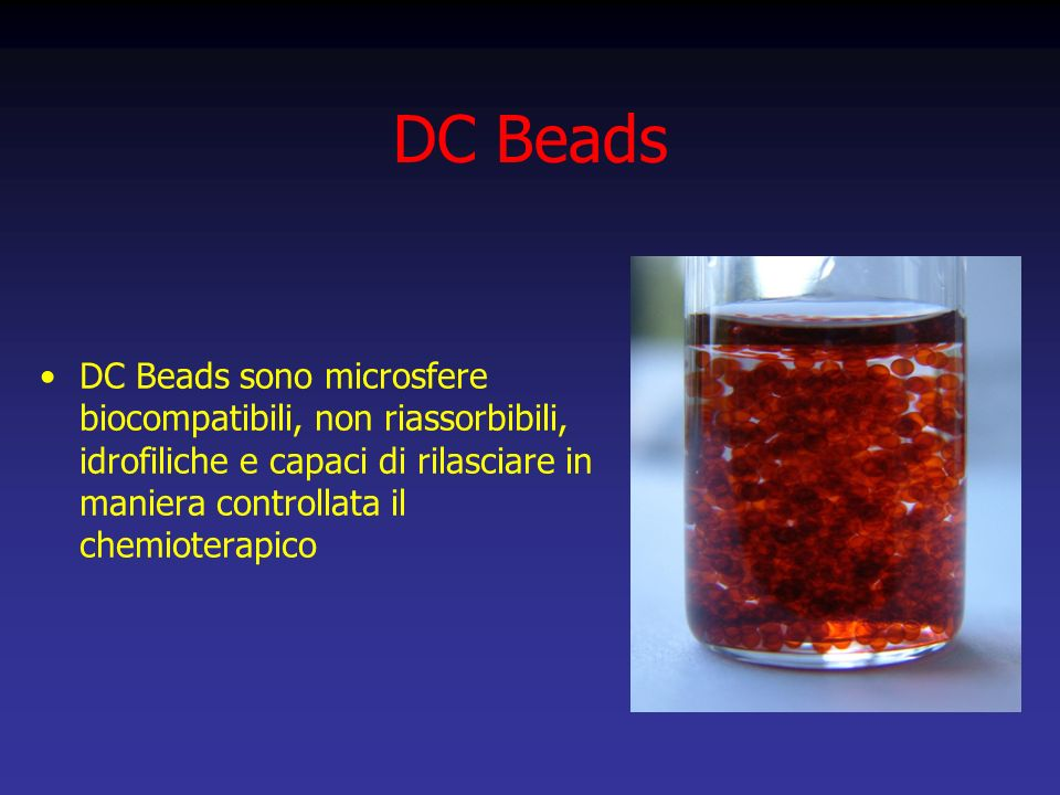 DC Beads DC Beads sono microsfere biocompatibili, non riassorbibili, idrofiliche e capaci di rilasciare in maniera controllata il chemioterapico.