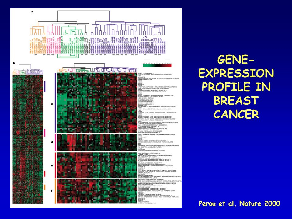GENE-EXPRESSION PROFILE IN BREAST CANCER