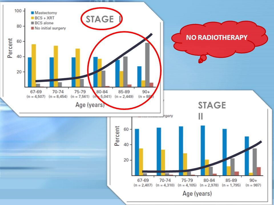 STAGE I NO RADIOTHERAPY STAGE II
