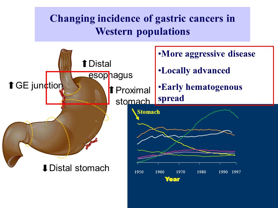 Changing incidence of gastric cancers in Western populations