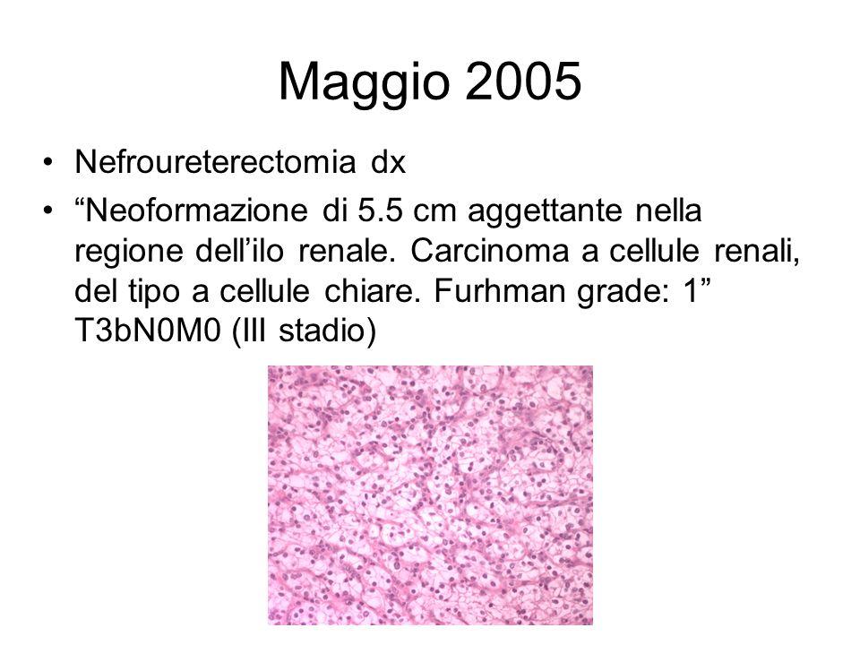 Maggio 2005 Nefroureterectomia dx