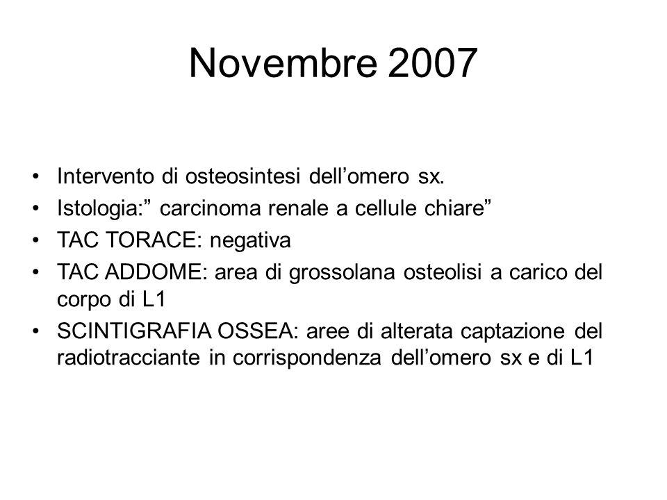 Novembre 2007 Intervento di osteosintesi dell'omero sx.