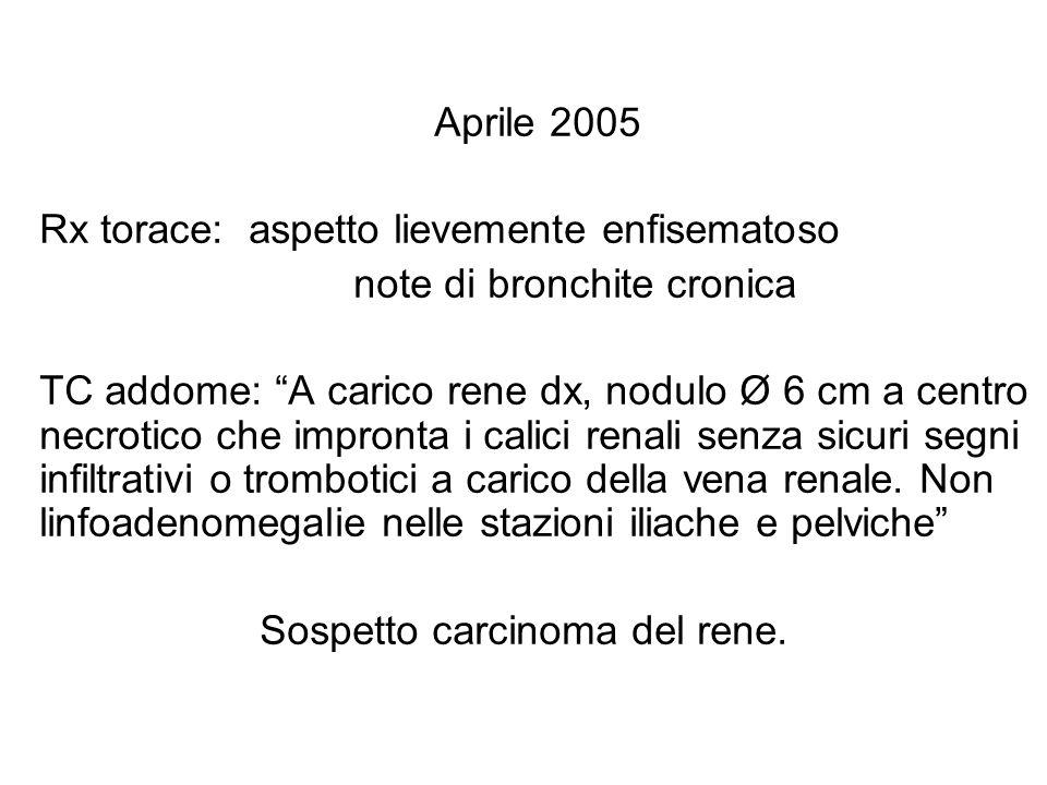 Aprile 2005 Rx torace: aspetto lievemente enfisematoso. note di bronchite cronica.