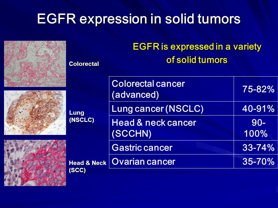 EGFR expression in solid tumors