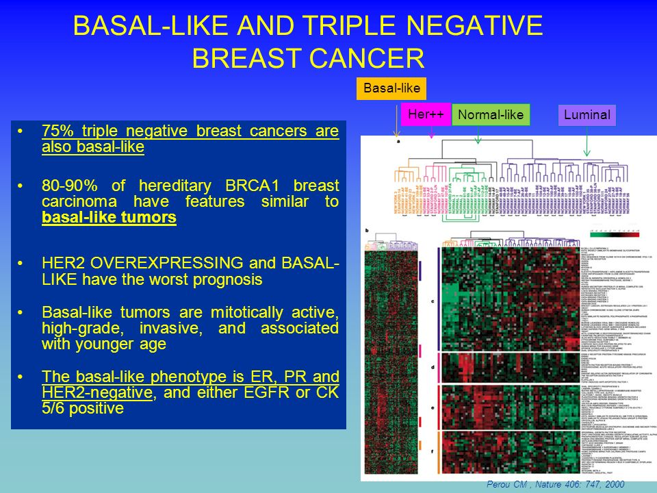 BASAL-LIKE AND TRIPLE NEGATIVE BREAST CANCER